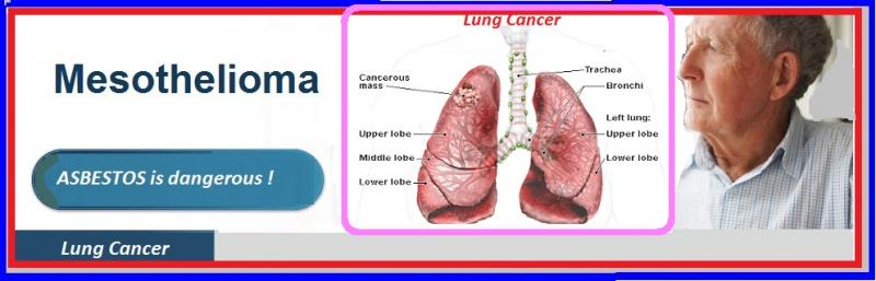 mesothelioma-lawyers-attorneys-usa
